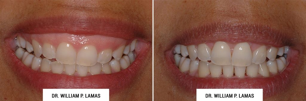 Gummy Smile Correction Before & After Photo - William P. Lamas, DMD - Periodontics & Dental Implants. Address: 2645 SW 37th Ave Suite 304, Miami, FL 33133 Phone: (305) 440-4114